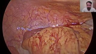 Лапароскопическая аппендэктомия. От А до Я. ВРОДЕ БЫ/ LS- appendectomy
