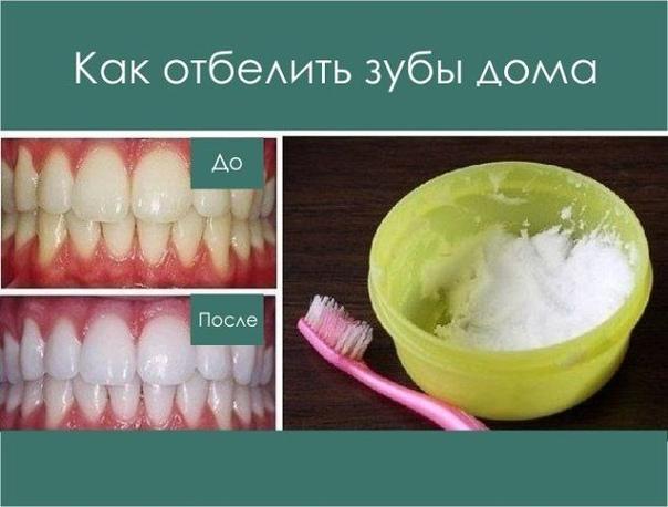 Отбелить зубы и не нанести им вреда Данный метод помогает практически при любых заболеваниях десен и при этом почти моментально отбеливает зубы, растворяет камень и залечивает маленькие ранки во