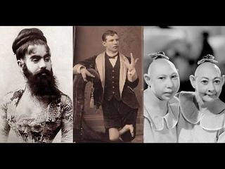 Цирк уродов: истории и трагедии цирковых уродцев, часть 4, Американская история ужасов