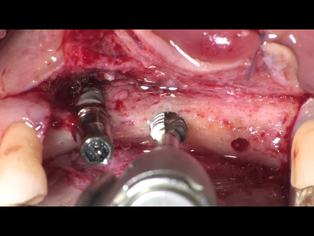 ANKYLOS® Surgical Protocol with 6 6 mm short implants in atrophic maxilla