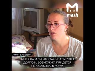 Врачи поджарили жительницу Вологодской области прямо во время операции