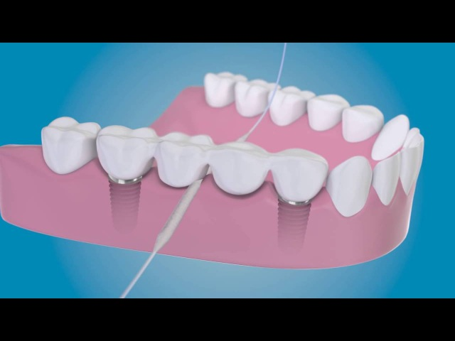 Суперфлосс как чистить вокруг имплантатов с помощью TePe Bridge Implant Floss