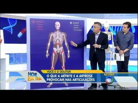 Artrite e artrose saiba como prevenir e tratar no Você e o Doutor