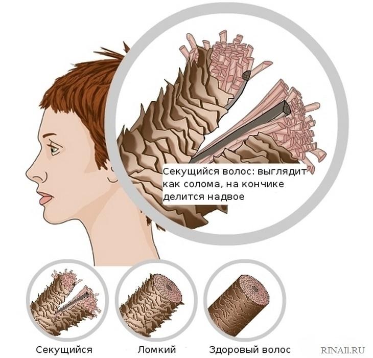 Как бороться с секущимися кончиками волос, изображение №2