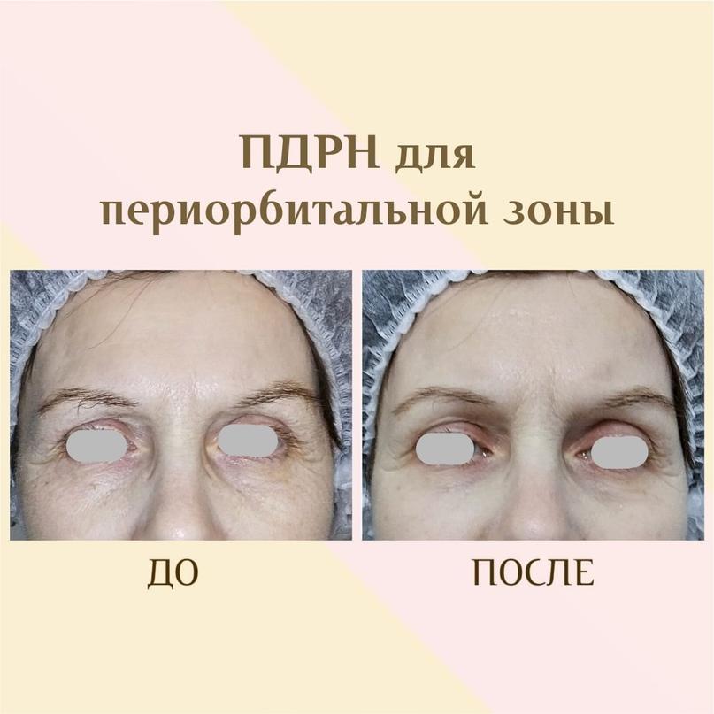 ПДРН в косметологии, изображение №1