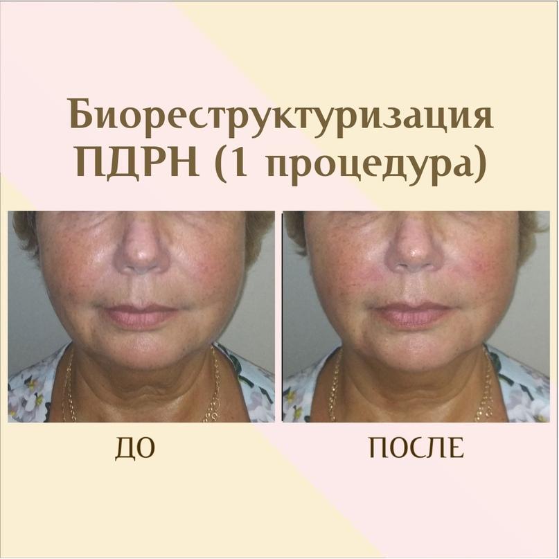 ПДРН в косметологии, изображение №2