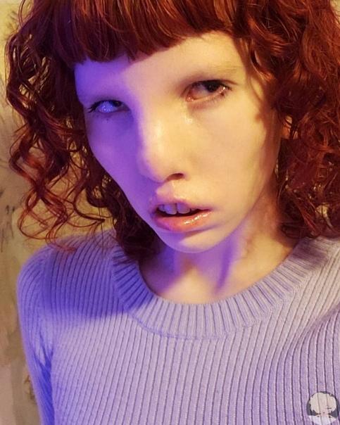 Канадка Кайтин Стиклез (Caitin Sticels появилась на свет с редким хромосомным отклонением, которое носит название синдром кошачьего глаза. Это расстройство часто приводит к обезображиванию лица,