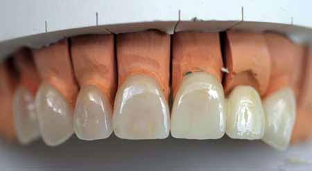 Нанесение фарфоровых виниров на чьи-то зубы - это косметическая процедура, которая не требует хирургического вмешательства.
