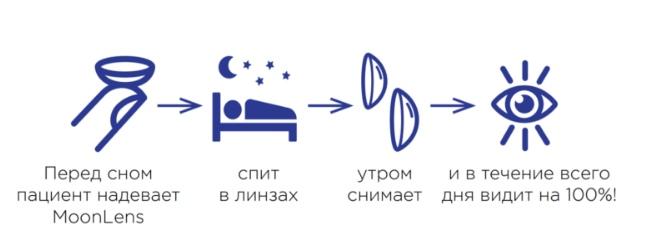 Ночные (ортокератологические) линзы, изображение №2